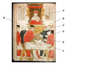 図2  Fasciculo di medicina (Venice, 1493)より